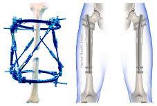 Do you want to grow taller Grow Tall Powerful bone growth pills